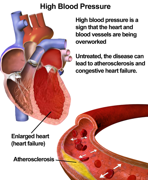 Hypertension (High Blood Pressure) and enlarged heart