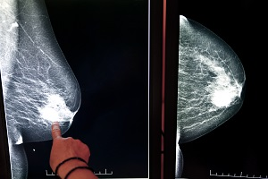 Biannual MRIs Recommended For Women At High Risk Of Breast Cancer