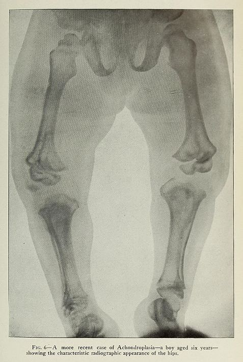 X-ray scan image of a boy with short legs