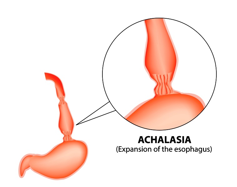 Expansion of the esophagus