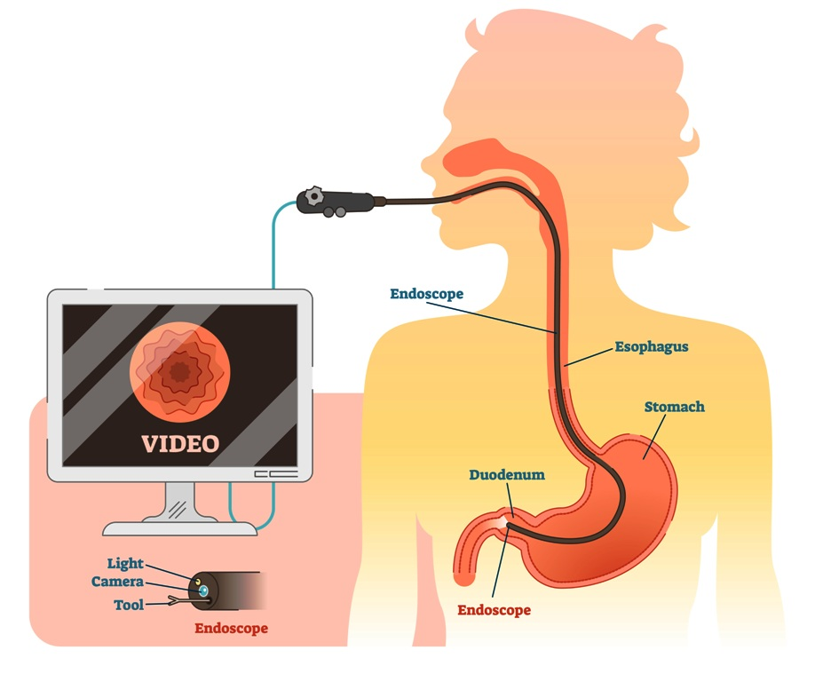 Endoscopic monitoring of esophagus and stomach