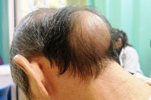 Bumps on Head