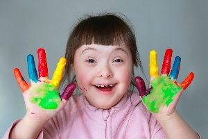 Down Syndrome: Causes, Symptoms, Diagnosis and Treatment