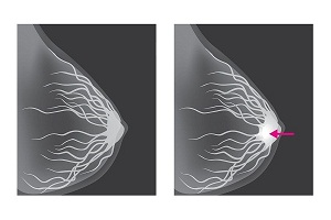 What is a Mammogram?