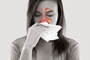 An Overview of Sinusitis or Sinus Infection