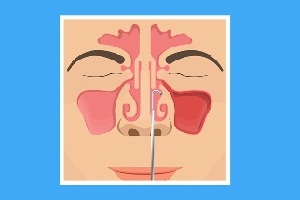 Sinus Irrigation or Nasal Irrigation