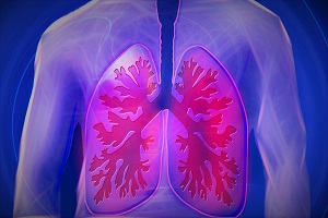 End Stage Chronic Obstructive Pulmonary Disease (COPD)
