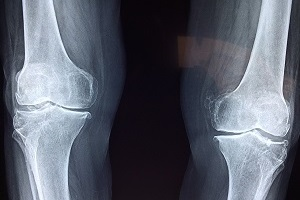 Can Bone Cancer Cause Limb Amputation?