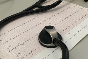 Understanding Your ECG for Pericarditis