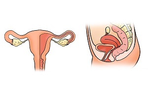 Causes of Pelvic Inflammatory Disease (PID)