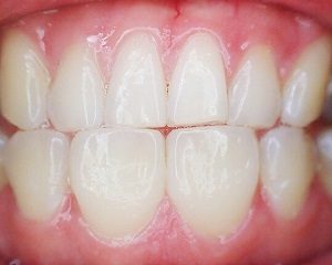 Relationship Between Stress and Teeth Grinding (Bruxism)