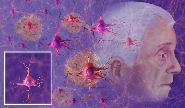causes of alzheimer's disease