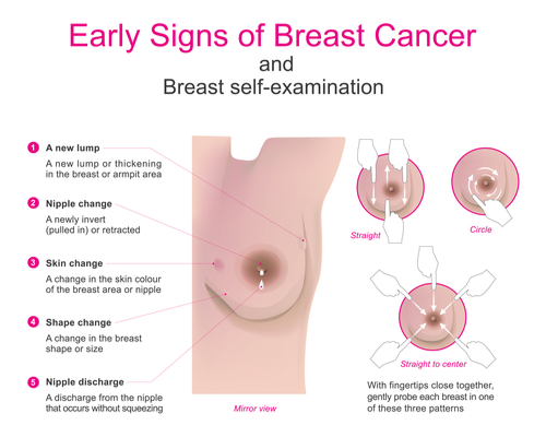 breast cancer signs and symptoms?