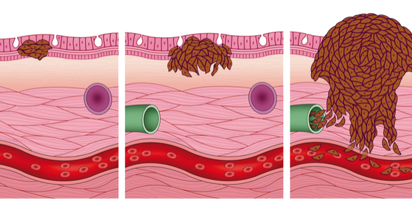 what you should know about stage 0 melanoma